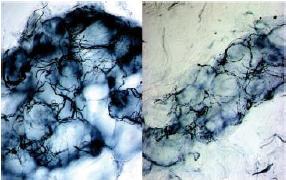 Lato sinistro: normale innervazione di una ghiandola sudoripare nella gamba in una persona sana Lato destro: ridotta innervazione di una ghiandola sudoripare in una persona diabetica